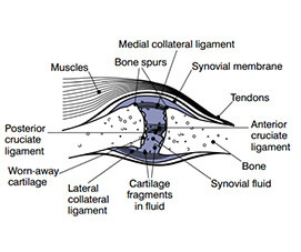 Hyaluronic Acid in Bones and Cartilage